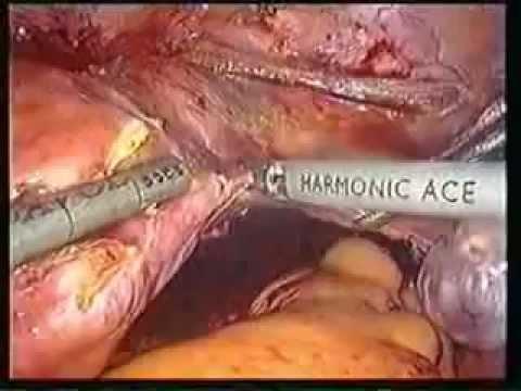 Cắt tử cung nội soi.flv