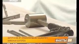 Кубанские специалисты провели операцию по исправлению позвоночника при болезни Бехтерева