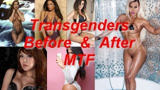 Post op transsexual Naked