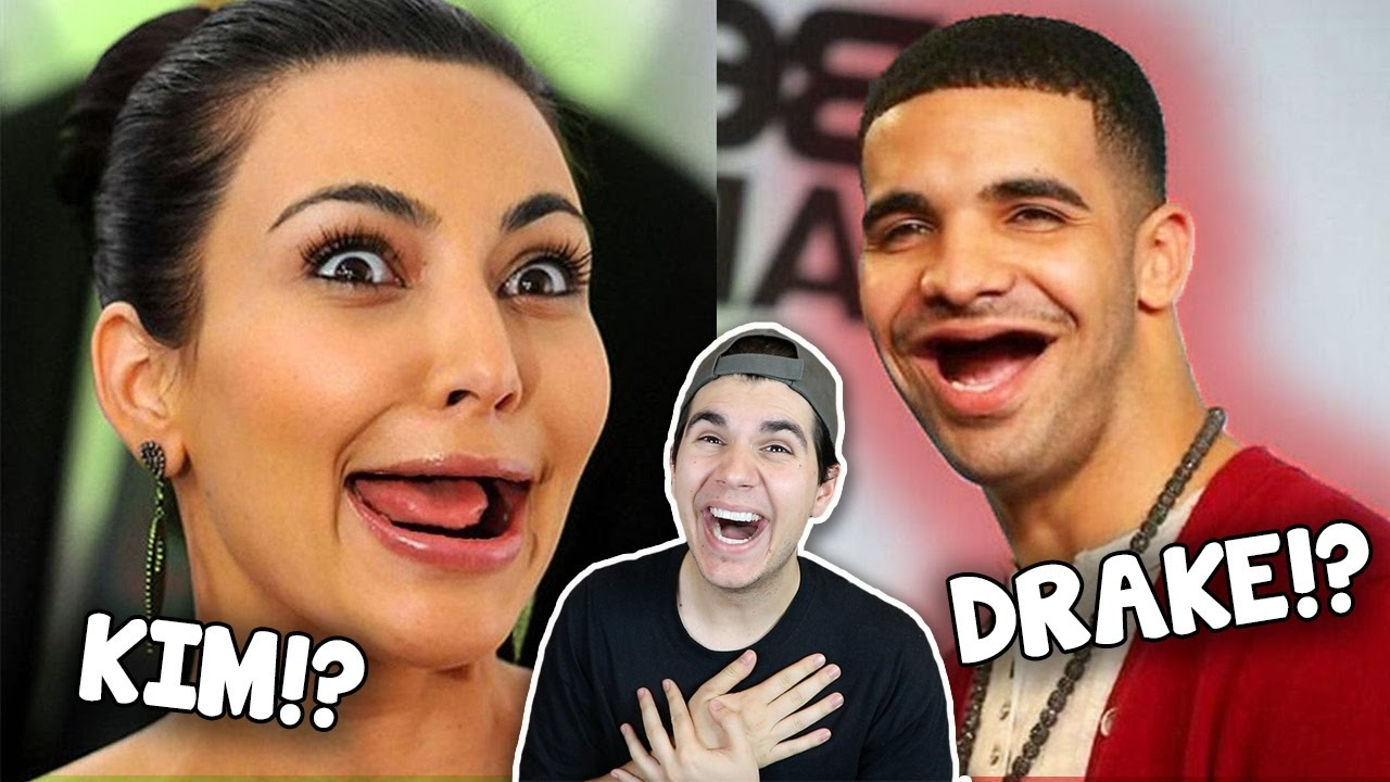 hilarious-photos-of-celebrities-without-teeth