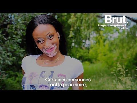 Winnie Harlow, mannequin atteinte de vitiligo