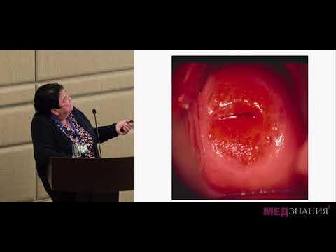 11 Микробные пленки как фактор развития хронического цервицита. Современные возможности лечения