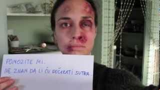 Une femme battue prend 1 photo par jour pendant 1 an !!