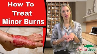 Treating Burns Using Home Remedies  - Vitalife Show Episode 125