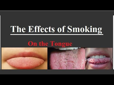 the effects of smoking Smoking and its effects on the skin authoritative facts about the skin from dermnet new zealand.