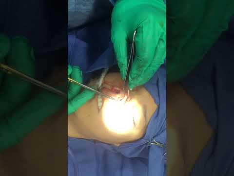 Revision Asian Rhinoplasty with Tip grafting, Alar Base Reduction with Dr. Hughes, Part 1