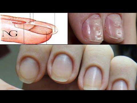 Признаки заболевания ногтей - Форум