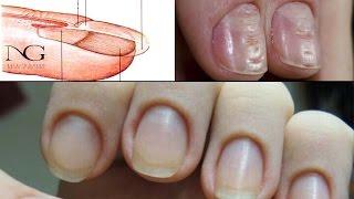 видео Неровные ребристые и волнистые ногти на руках: причины и действия
