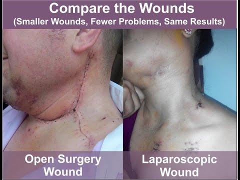 Minimally Invassive Neck Dissection Mind By Dr Sandeep Nayak