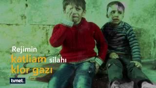 Halep çocuklarıyla birlikte ölüyor