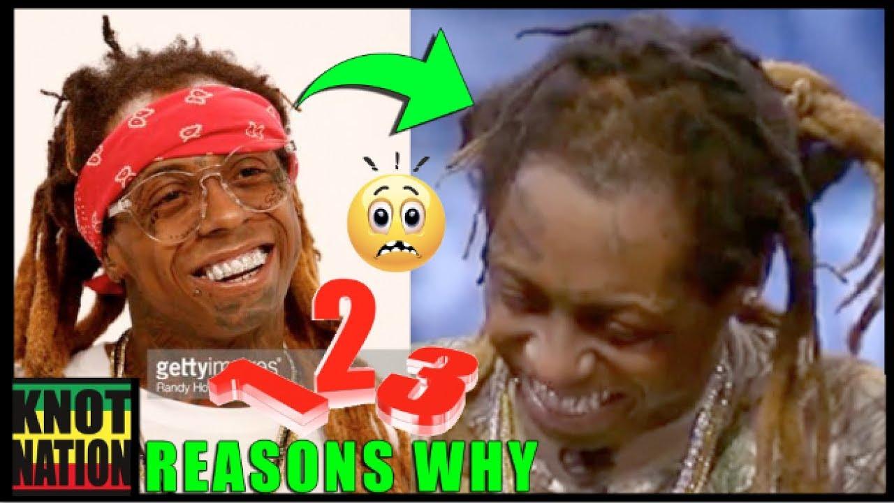 3 reasons lil wayne bald