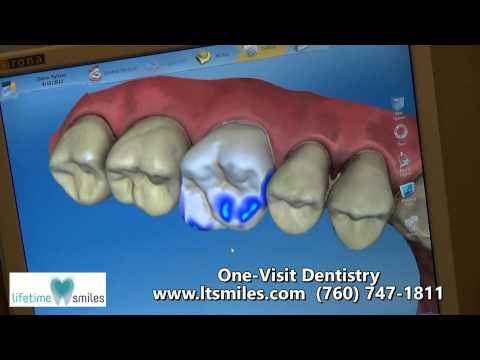 CEREC - Same Day Crowns | Escondido | San Diego