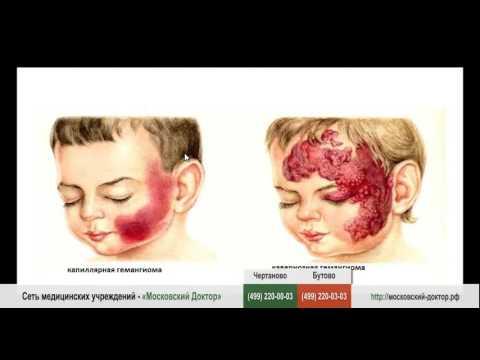 Гемангиома – виды и симптомы гемангиомы