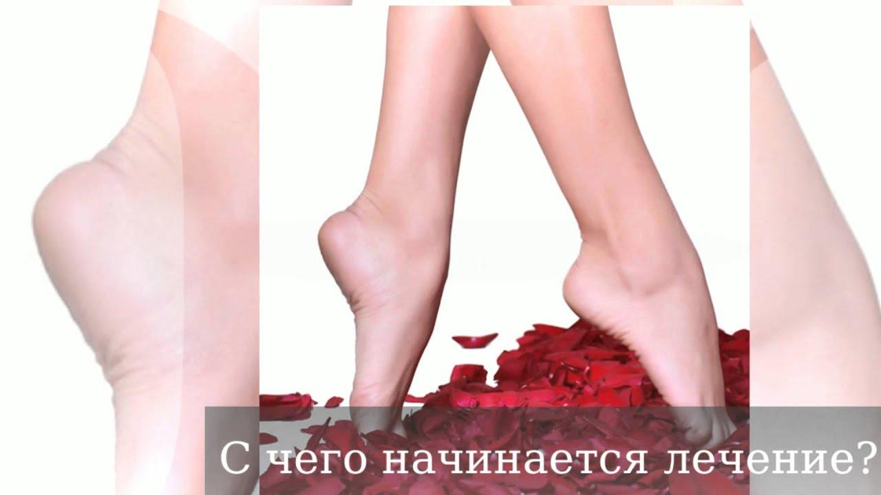 Самые читаемые статьи: Варикоз лечение брест