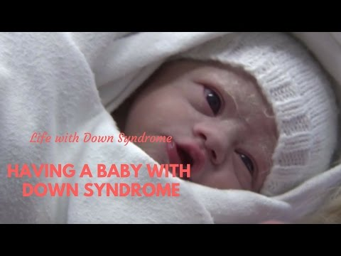 Having a baby with Down Syndrome
