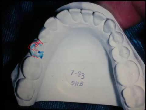 Ortho. Rotation of teeth