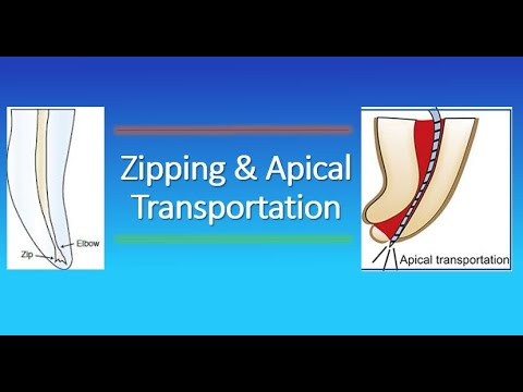 Zipping And Apical Transportation In Endodontics?