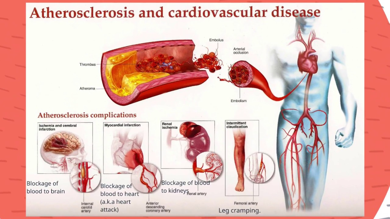 Image result for An Overview of Atherosclerosis