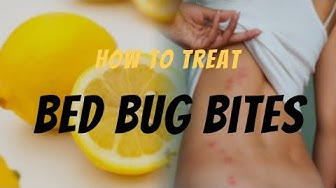 How to Treat Bed Bug Bites - The Guardians Choice