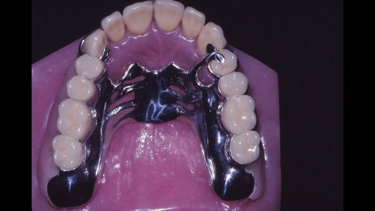 Pr tesis dentales youtube for Cuanto cuesta una recamara completa