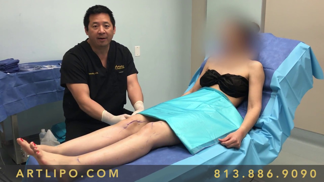 Definition of physical therapy - Ankles Cankles Calves Knees Legs 11 High Definition Liposuction Experts Drs Su And Gruber