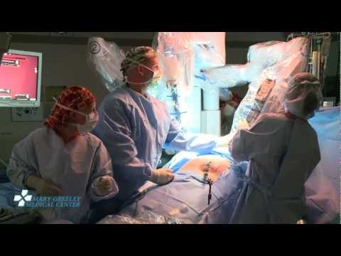 Robot-Assisted Single-Site Gallbladder Removal (Full-Length