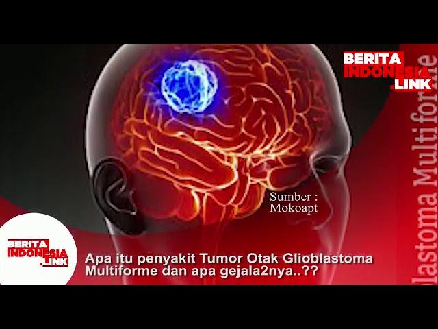 Apa itu penyakit Tumor Otak Glioblastoma Multiforme dan apa gejala2nya??