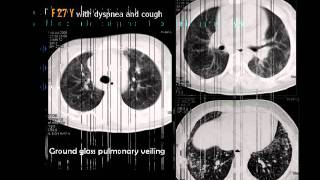 Diffuse lung disease L