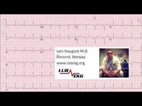 Hvordan lese EKG for turnusleger  (Norwegian)