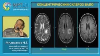 «Дифференциальная диагностика очаговых и объемных изменений головного мозга»