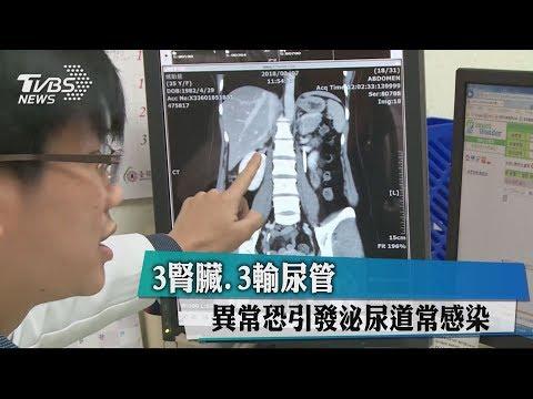 3腎臟、3輸尿管 異常恐引發泌尿道常感染