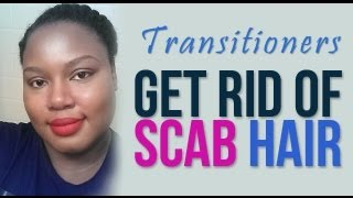 Transitioning: Get Rid of Scab Hair