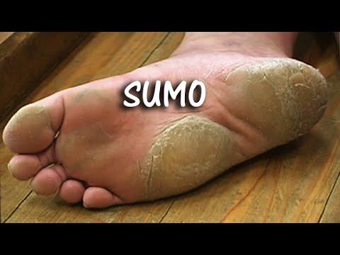 The Secret Side of Sumo