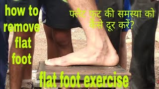 SSC GD Flat foot problem (how to remove problems by Sunderlal bhavar 6264212131)