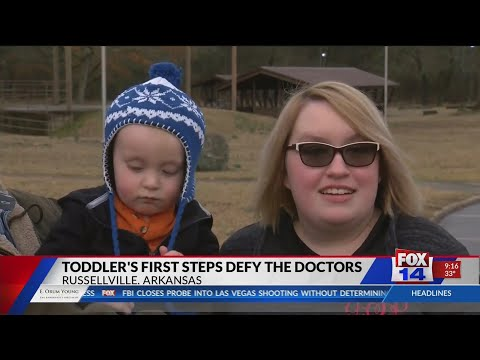Toddler's first steps defy the doctors
