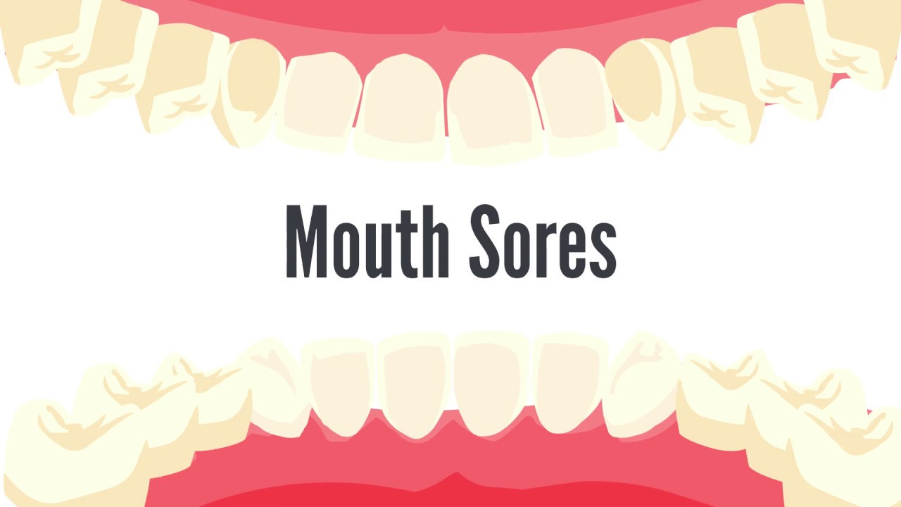 Download 6. Mouth Sores