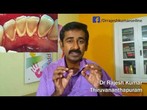Gum Disease: Causes, Prevention,