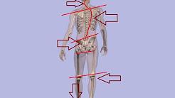 hqdefault - Back Pain Uneven Gait