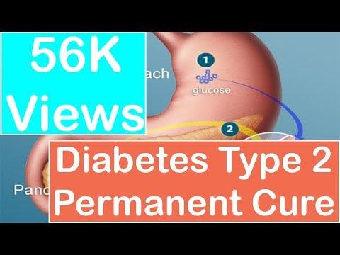 Diabetes Type 2 Permanent Cure : Diabetescure9.com