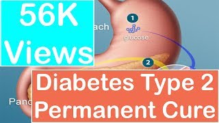 Diabetes Type 2 Permanent Cure : Diabetescure9.com(Click Here : http://www.diabetescure9.com/ Diabetes has become one of the greatest challenges in front of the entire world of health and medical sciences today., 2015-11-20T10:33:30.000Z)