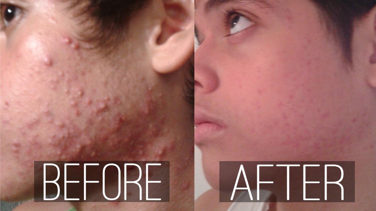 Como librarse de las manchas del acné sobre la persona