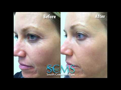 Newport Beach Skin Rejuvenation-Before and After