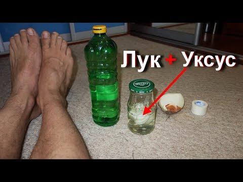 Как вывести куриную бородавку на ноге