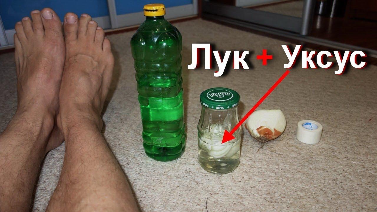 Уксус выведение бородавок - Afishaclub.ru