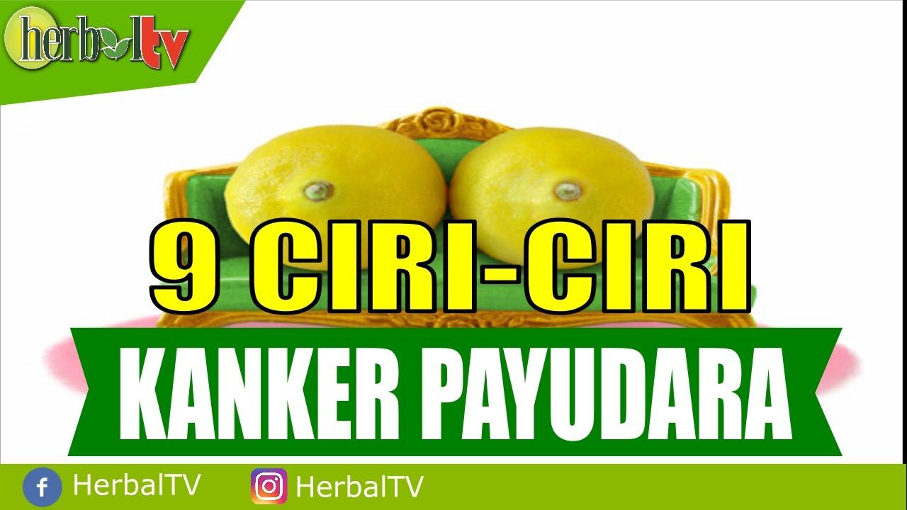 9 Ciri-Ciri Kanker Payudara - YouTube