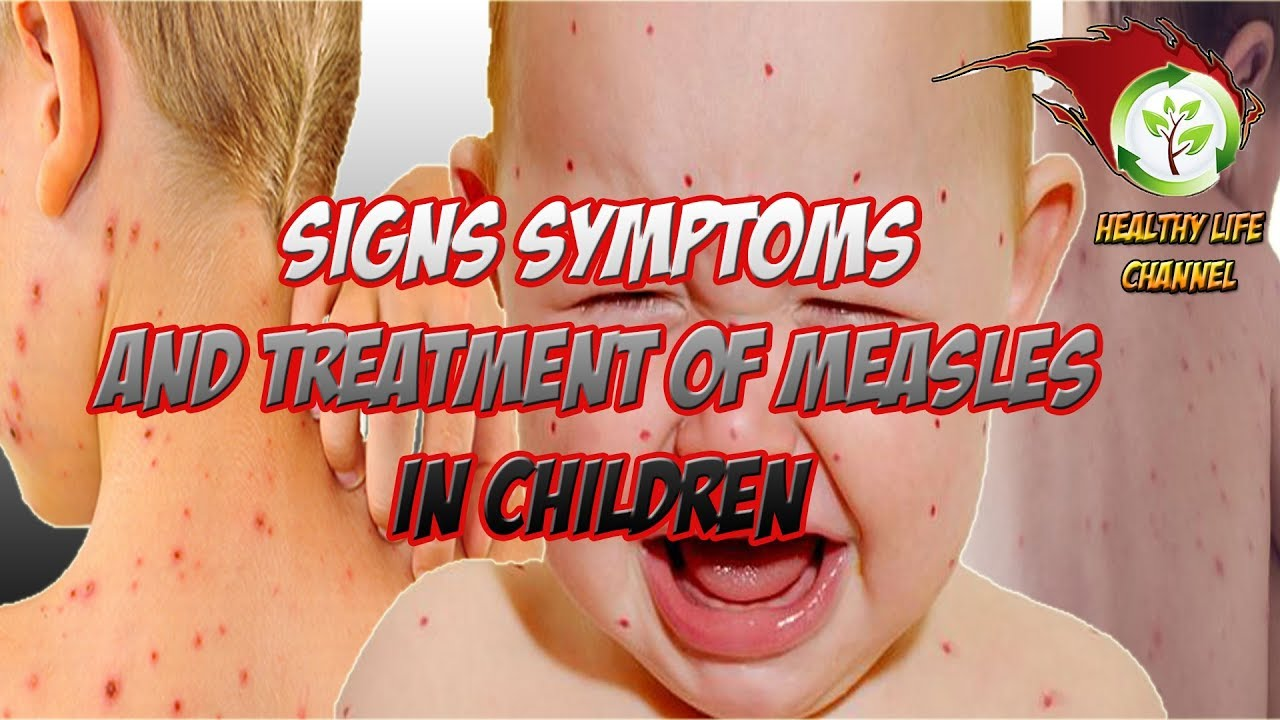 signs symptoms and treatment of measles in children - youtube, Cephalic Vein