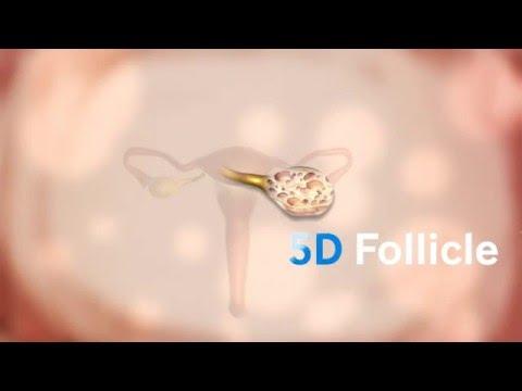 5D Follicle измерение фолликулов