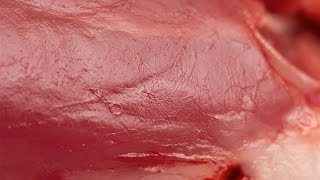 Human Physiology - Single- and Multi-Unit Smooth Muscle
