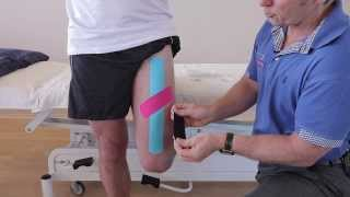 How to treat a strain of the Rectus Femoris (Quadricep) muscle using Kinesiology Tape