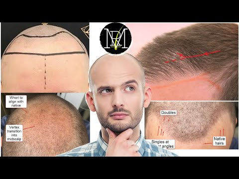 what-to-look-for-in-a-good-hair-transplant?